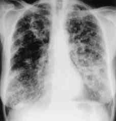 Chest X-ray showing poorly defined bilateral nodular  opacities (Al-Alawi 2007).