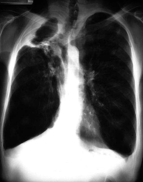 Right apical cavity, patient DT