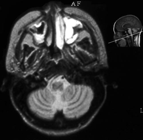 High intensity signal on the left on this MR scan on an allogeneic BMT patient with histologically proven Aspergillus sinusitis.