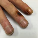 Nicotine stained fingers - image 1