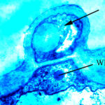 A terreus aleurospore TEM in vitro (РКПГF-1275)