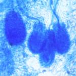 A. clavatus