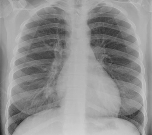 Image E. Chest X ray 1 (cf CT scan 1) one week pre-admission