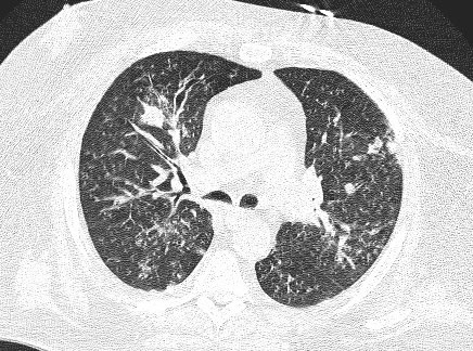 Image C. CT scan 3: Following 6 weeks antifungal treatment