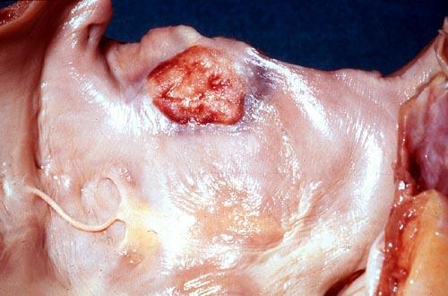 Image B. Aortic valve endocarditis, pt DB.