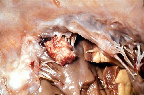 Image C. Mitral valve endocarditis, pt DB
