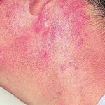 Patient AB: Discoid lupus erythematosus following 12 months voriconazole therapy. This improved with use of sunblock factor 30 and resolved after discontinuation of voriconazole, 2 months later.