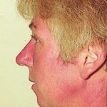 Patient AB: Voriconazole rash. Following 8 weeks of Voriconazole, patient had remarkable facial erythema, most consistent with sun exposure because of sparing of her neck.