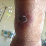 Zosteriform scatris with erythematous halo on the skin of the patient with acute myelogenous leukemia during the febrile neutropenia attack.