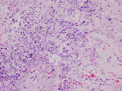 Histological findings of invasive cutaneous aspergillosis. Skin biopsy showing fungal hyphae accumulated in the dermiş.