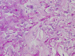 Non-branching fungal hyphae and intensive neutrophil infiltration in the dermis. Fungal infiltration also seemed to invade the vessels.